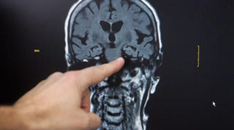 Estimulación cerebral reduce los antojos de comida