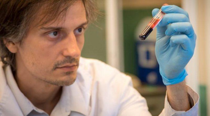 Investigadores descubren nuevo síndrome de inmunodeficiencia humana