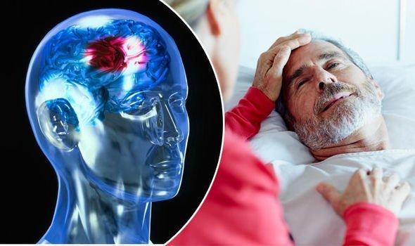 Sabes que es una Aneurisma Cerebral? Cómo detectar este peligro antes de que sea demasiado tarde