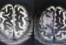 Nuevo tratamiento de radioterapia hipofraccionada elimina las metástasis cerebrales