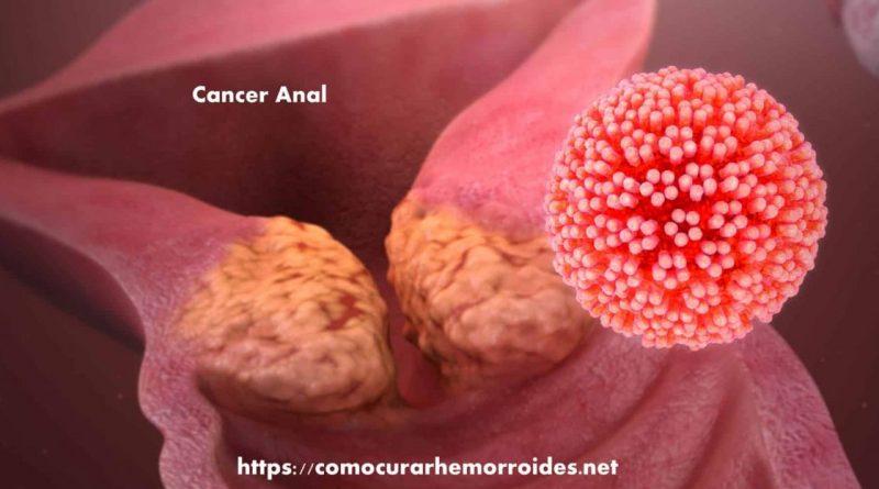Detectan peligroso aumento en casos de cáncer anal